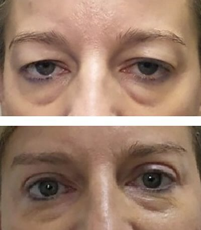 blepharoplasty opens eyes and lifts eyelids with brow lift - before and after pictures