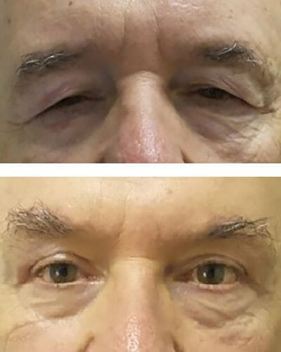 blepharoplasty and direct lateral brow lift open eyes and restore youthful look - before after photos