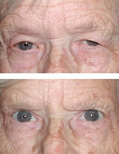 blepharoplasty restores upper field of vision (before and after)